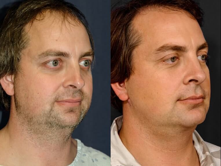 Rhinoplasty before and after patient 12 case 5417 side view