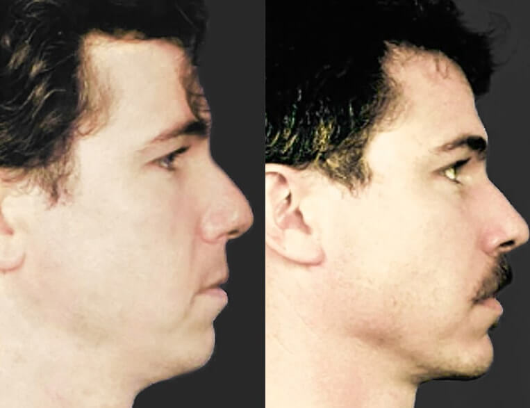 Rhinoplasty before and after patient 13 case 5378 side view 2
