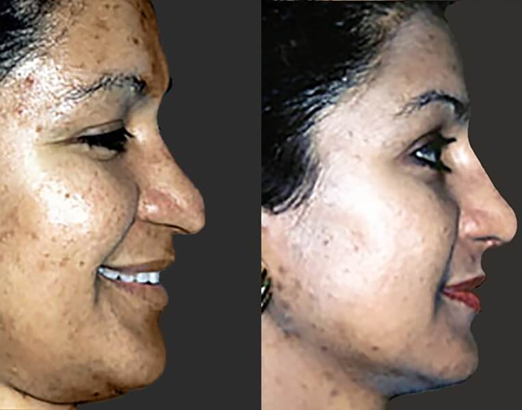 Rhinoplasty before and after patient 14 case 5387 side view