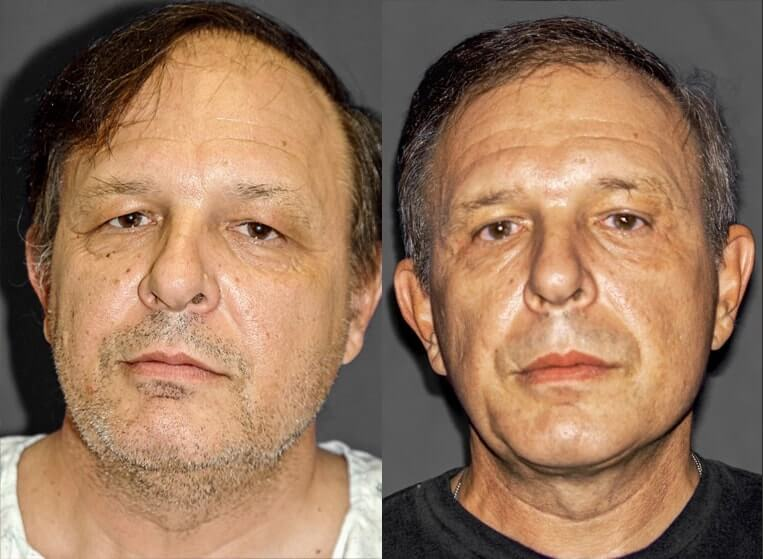 Rhinoplasty-before-and-after-patient-15-case-5411-front-view