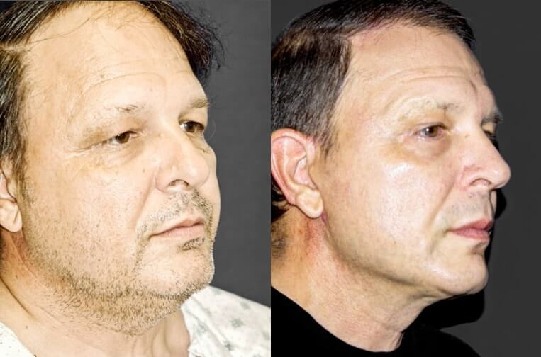 Rhinoplasty before and after patient 15 case 5411 side view