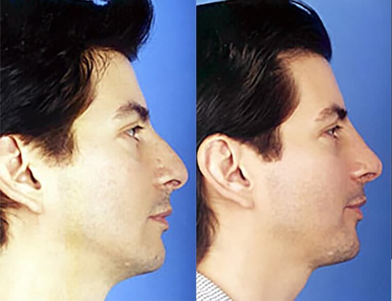 Rhinoplasty-before-and-after-patient-16-case-5391-side-view
