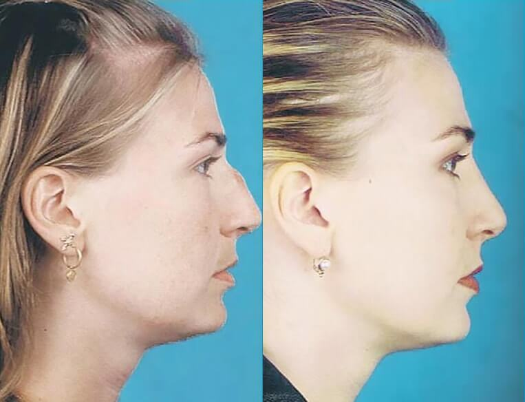 Rhinoplasty-before-and-after-patient-17-case-5452-side-view-2