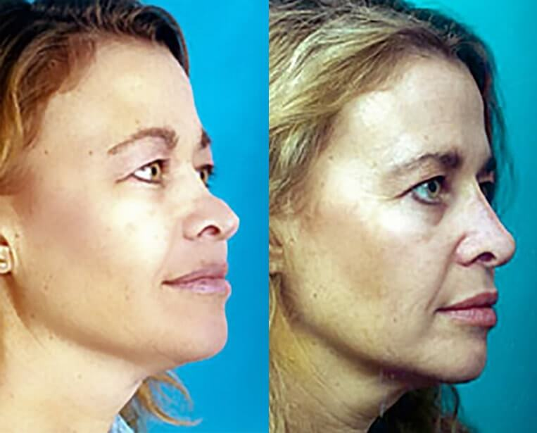 Rhinoplasty before and after patient 18 case 5433 side view