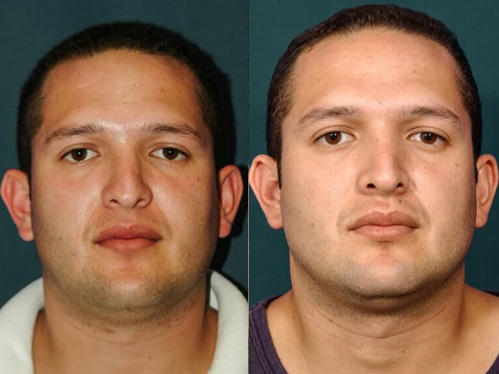 Rhinoplasty-before-and-after-patient-2-case-5514-front-view