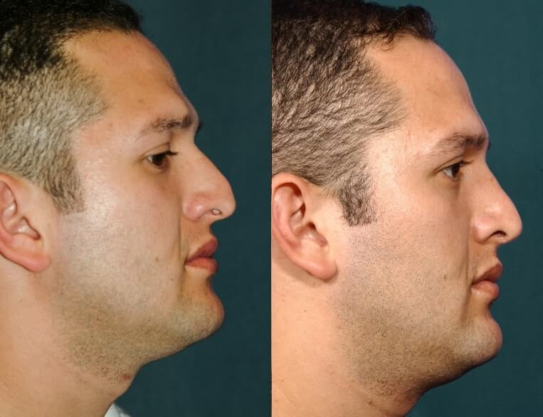 Rhinoplasty before and after patient 2 case 5514 side view