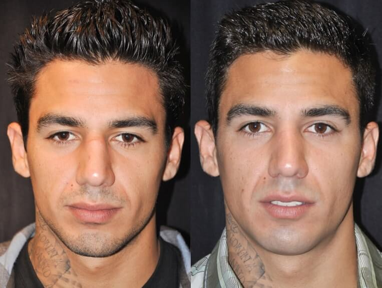 Rhinoplasty before and after patient 3 case 5506 front view