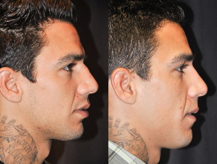 Rhinoplasty before and after patient 3 case 5506 side view 2