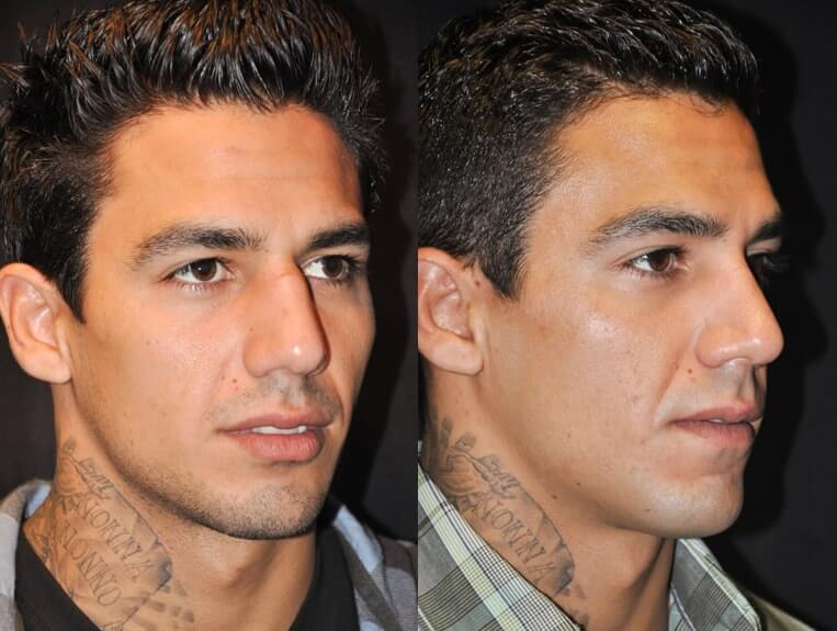 Rhinoplasty-before-and-after-patient-3-case-5506-side-view