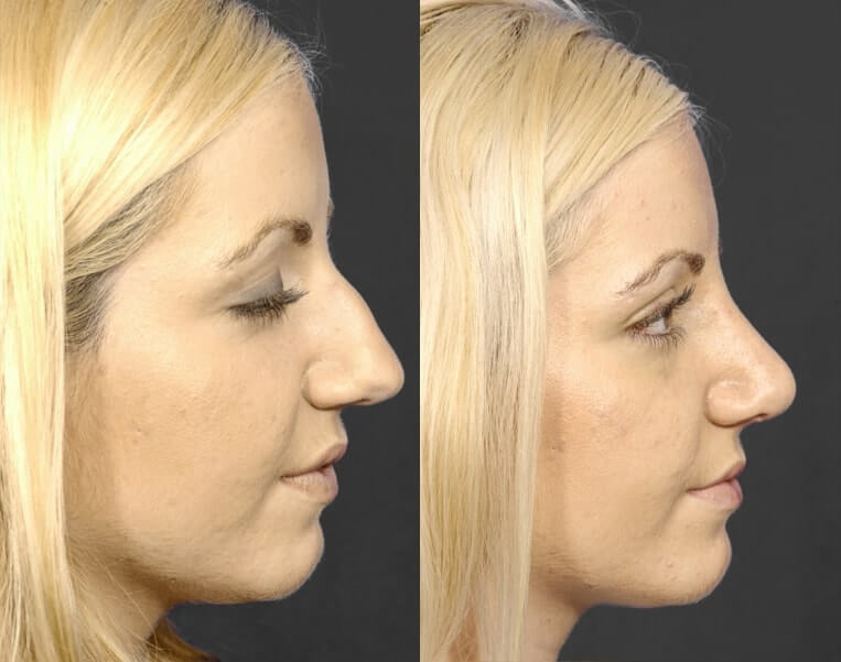 Rhinoplasty before and after patient 4 case 5464 side view