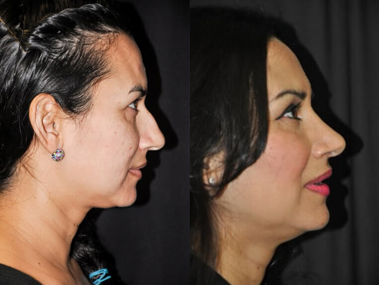 Rhinoplasty before and after patient 5 case 5498 side view 2