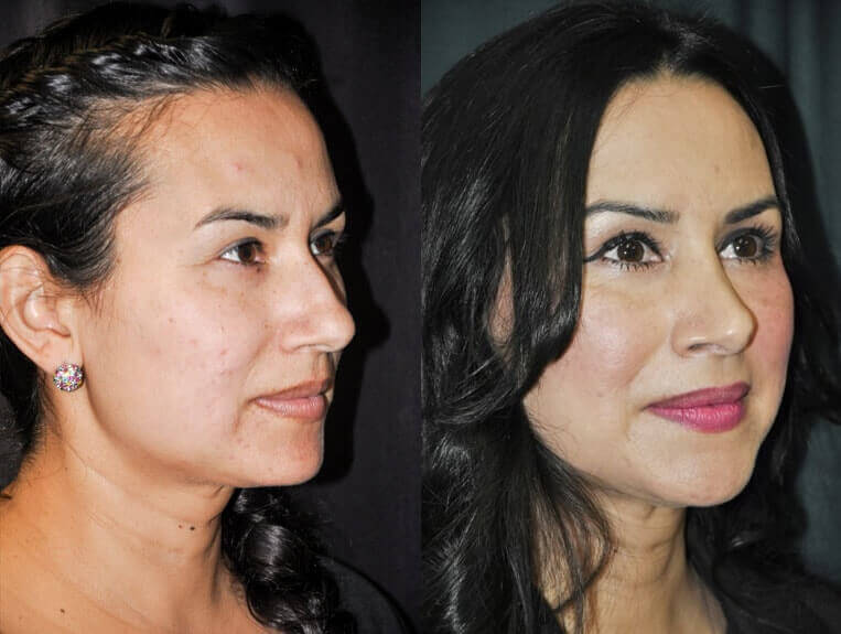 Rhinoplasty-before-and-after-patient-5-case-5498-side-view