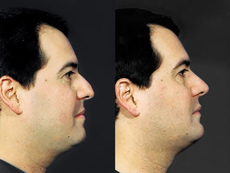 Rhinoplasty before and after patient 6 case 5492 side view 2