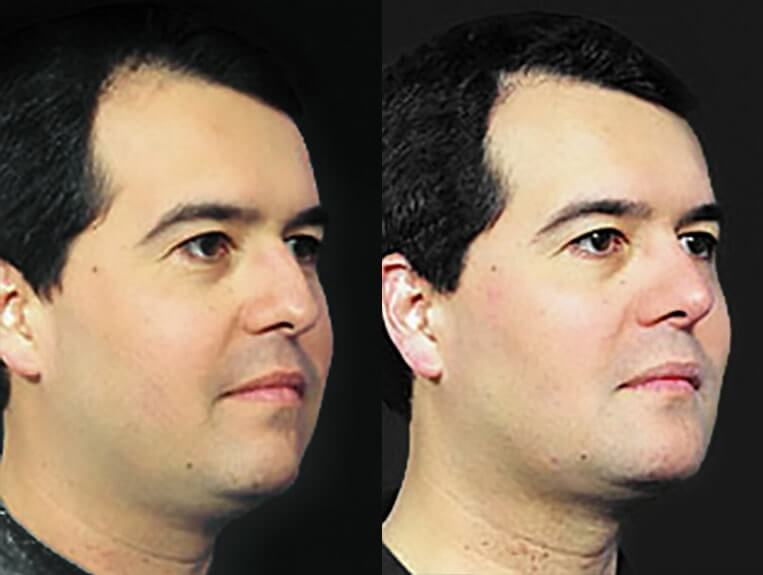 Rhinoplasty-before-and-after-patient-6-case-5492-side-view