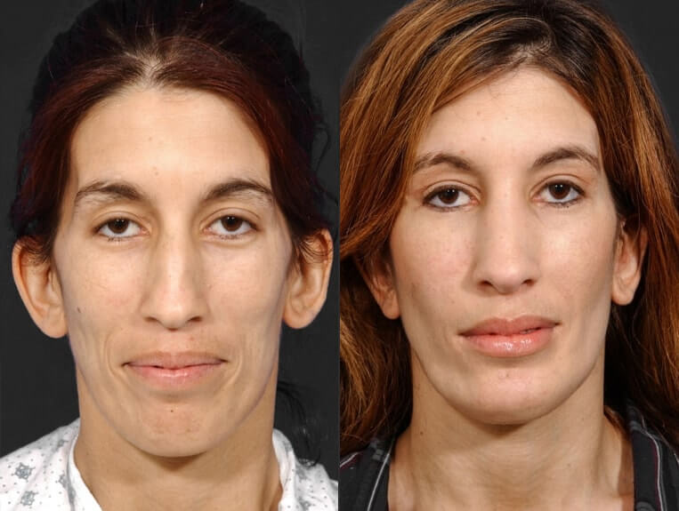 Rhinoplasty before and after patient 7 case 5444 front view