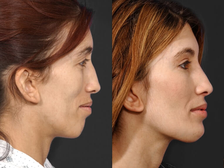 Rhinoplasty before and after patient 7 case 5444 side view 2