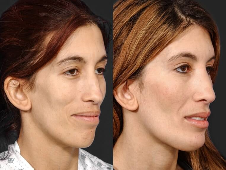 Rhinoplasty before and after patient 7 case 5444 side view
