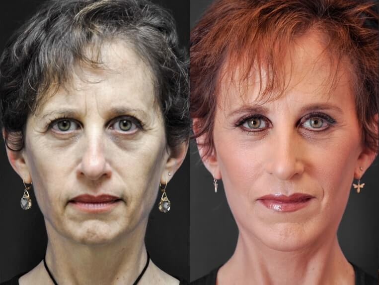Rhinoplasty-before-and-after-patient-8-case-5395-front-view