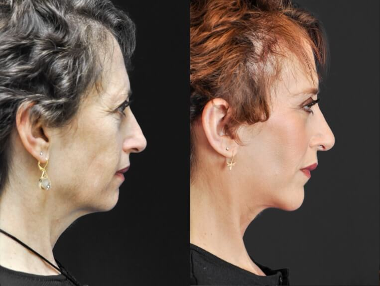 Rhinoplasty-before-and-after-patient-8-case-5395-side-view-2