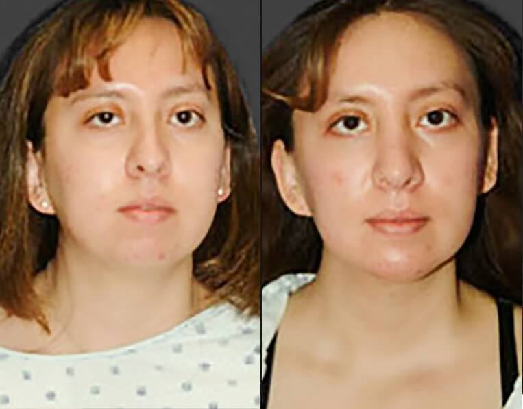 Rhinoplasty before and after patient 9 case 5425 front view