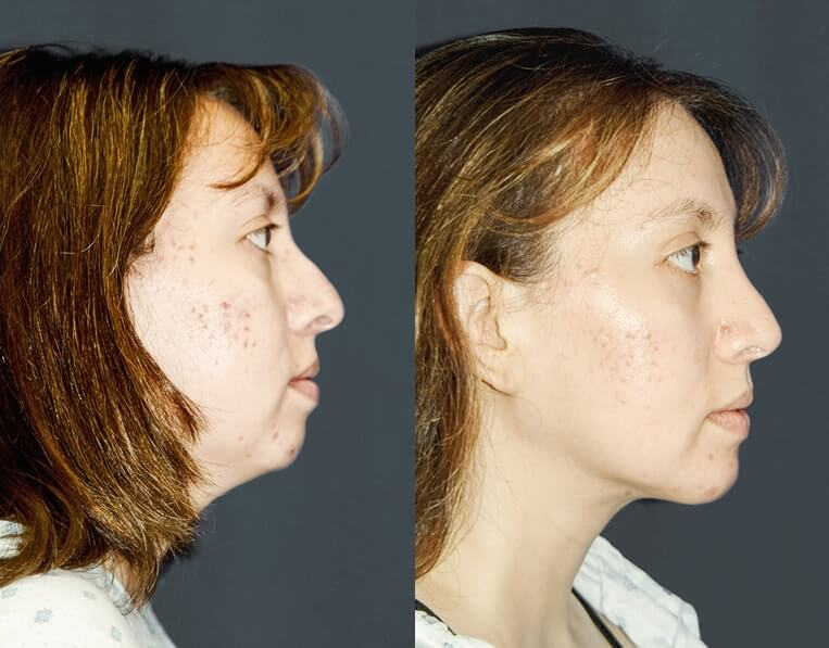 Rhinoplasty-before-and-after-patient-9-case-5425-side-view-2