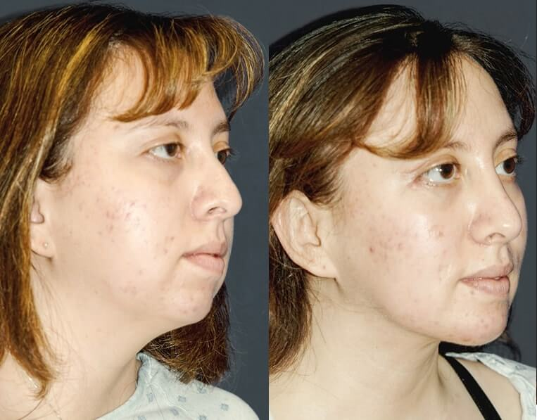 Rhinoplasty before and after patient 9 case 5425 side view