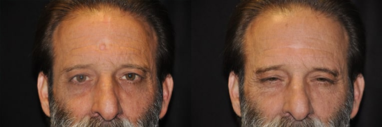 Scar-Revision-before-and-after-patient-01-case-4962-front-view-1