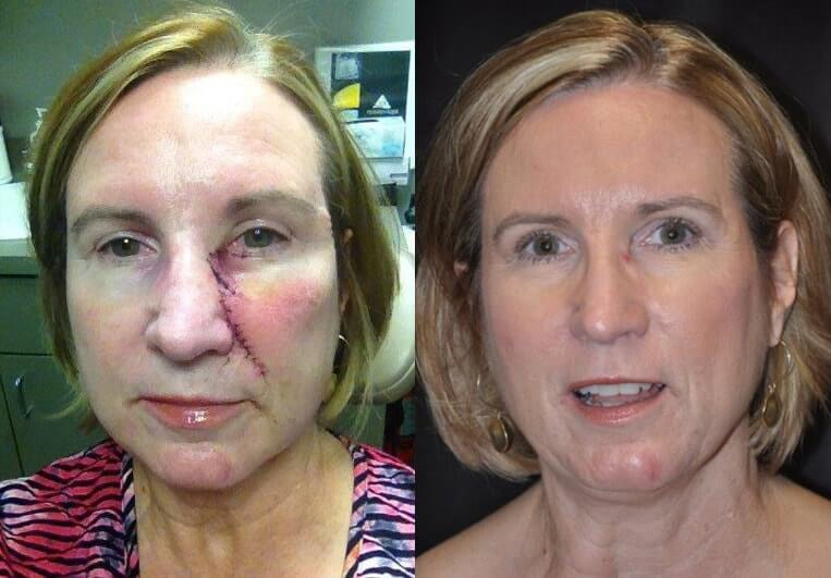 Skin Cancer before and after patient 01 case 4944 front view 1