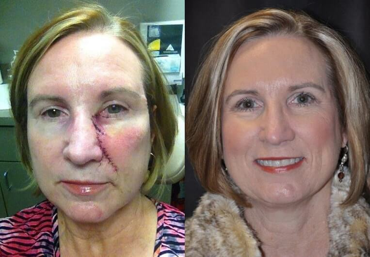 Skin Cancer before and after patient 01 case 4944 front view