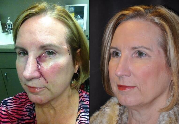Skin Cancer before and after patient 01 case 4944 side view 1