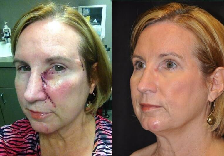 Skin Cancer before and after patient 01 case 4944 side view