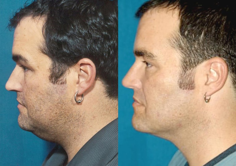 Submental Liposuction before and after patient 01 case 3969 side view