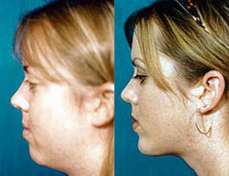 Submental Liposuction before and after patient 02 case 3975 side view