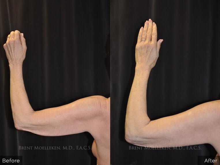 brachioplasty before and after left hand parient 1 dr brent moelleken 1