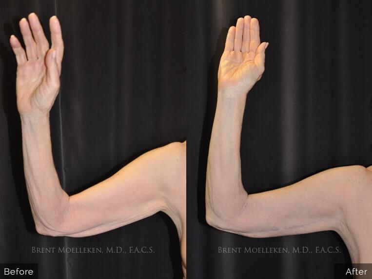 brachioplasty before and after left hand patient 1 dr brent moelleken