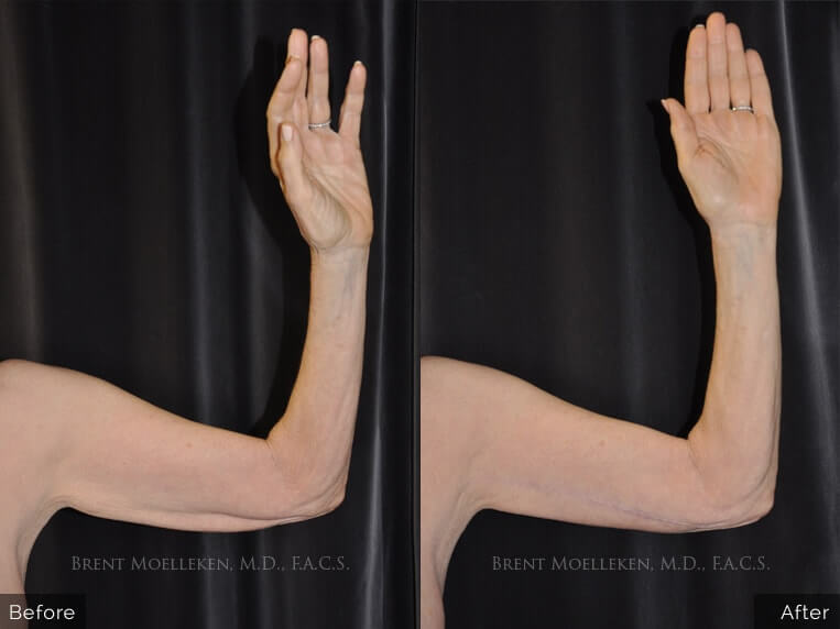 brachioplasty before and after right hand patient 01 dr brent moelleken