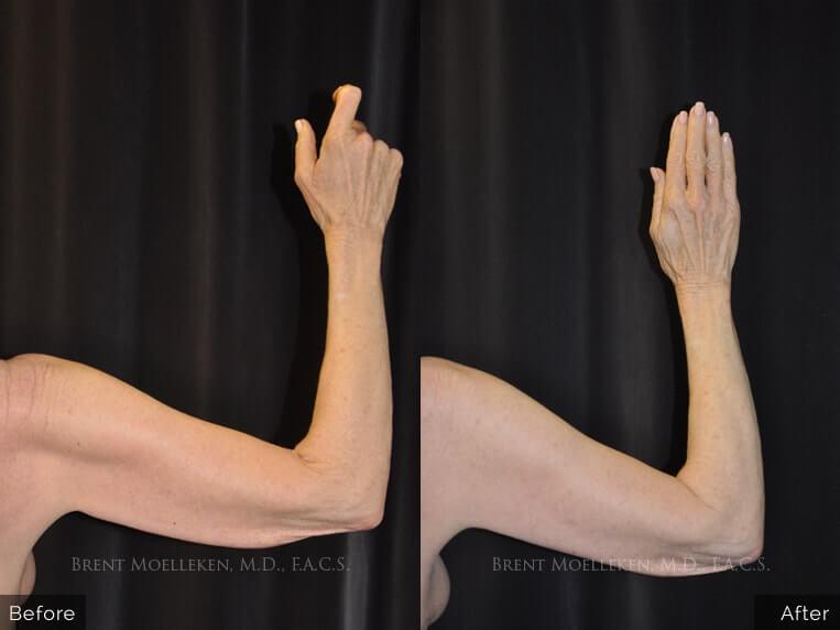 brachioplasty before and after right hand patient 1 dr brent moelleken