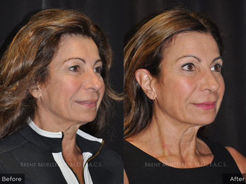 browlift before and after right angle patient-4