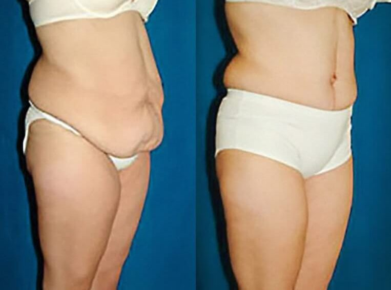 Liposuction-before-and-after-patient-03-case-3145-side-view