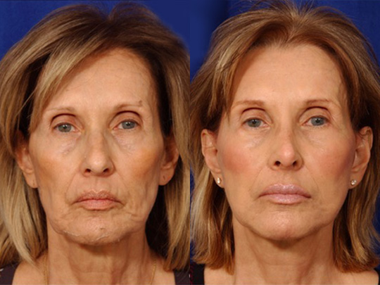 Laser Skin Resurfacing before and after 1