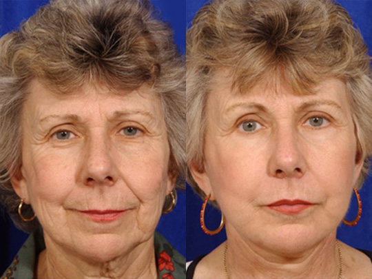 Lip Augmentation before and after 1a 1