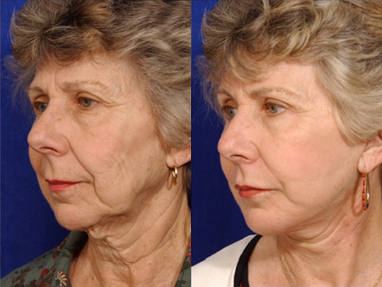 Lip Augmentation before and after 1b 1
