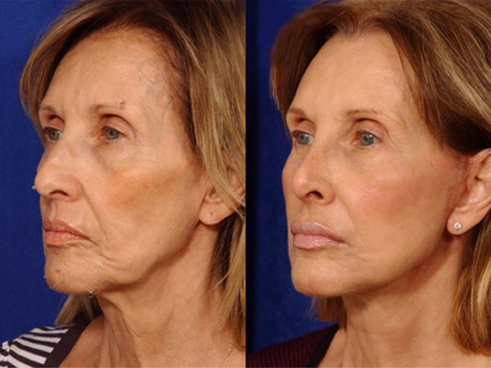 Rhinoplasty before and after 3 2