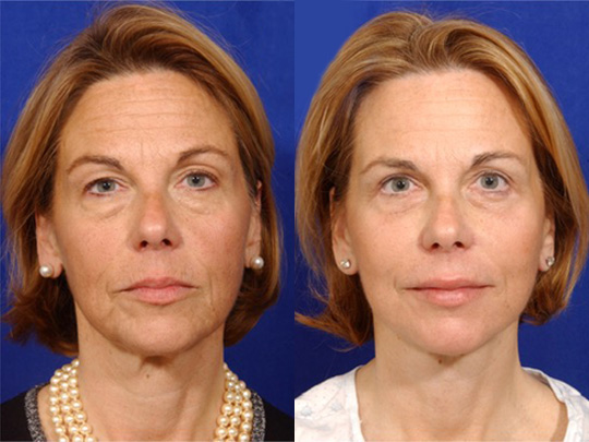 Necklift before and after b1
