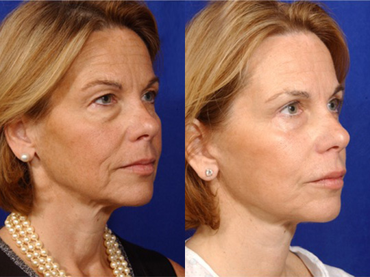 Necklift before and after b2 1