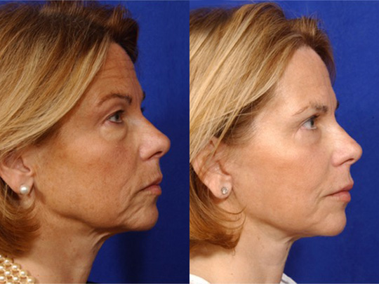 Necklift before and after b3 1