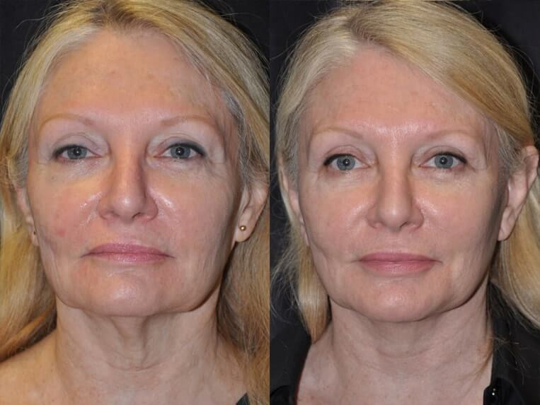 facelift before and after patient 01 case 5192 front view