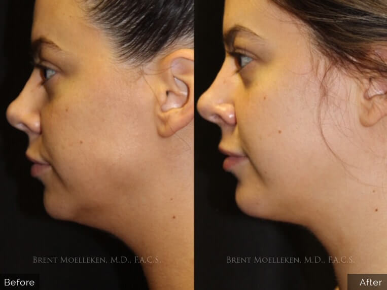 facelift lipo before and after 3 left side patient 1