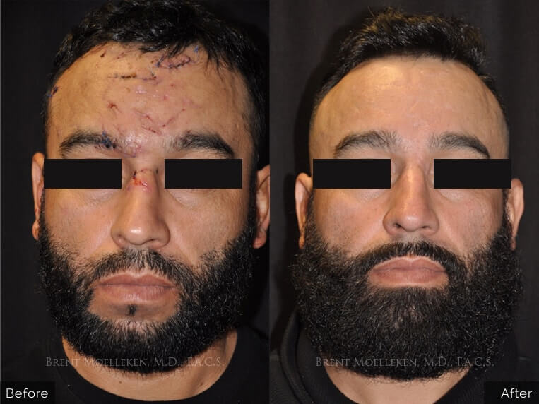 facial scars reconstruction before and after front angel patient 1 dr brent moelleken