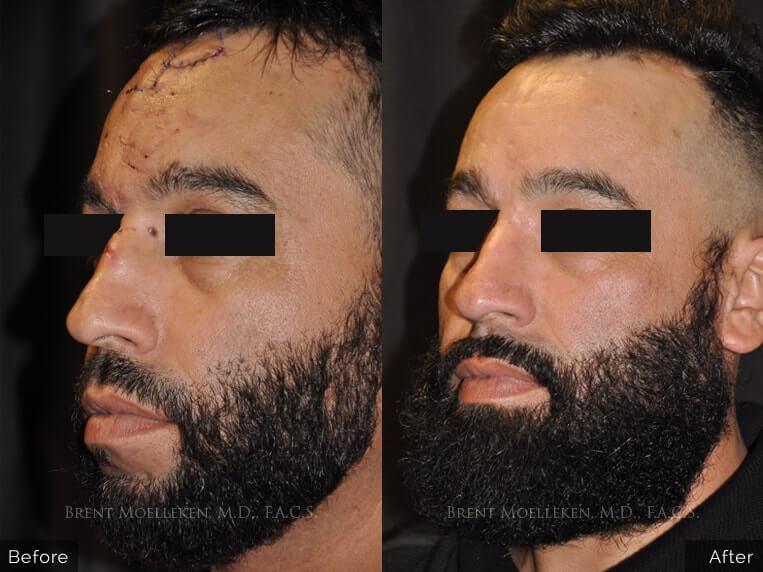 facial scars reconstruction before and after left angel patient 1 dr brent moelleken